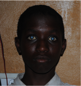 Young man with cataracts